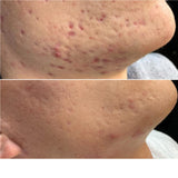 PhiBright Microneedling Treatment