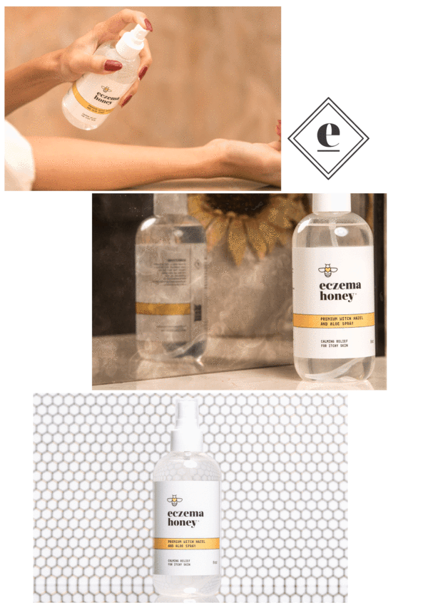 Eczema Honey - Premium Witch Hazel and Aloe Spray