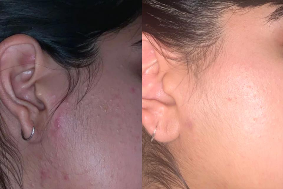 Comparison of acne-ridden skin before and after using Creme Cleanser for Most skin