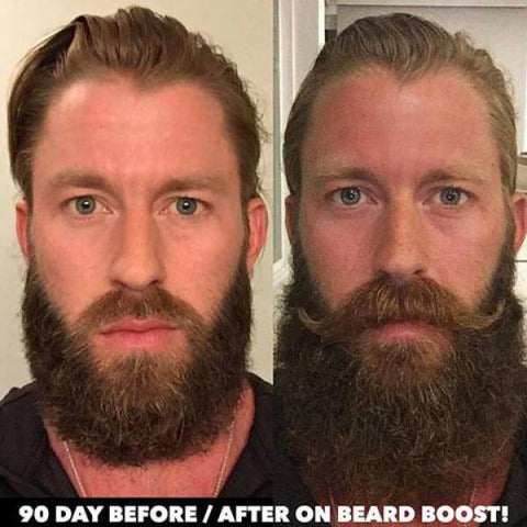 Before and After beard - Spencer