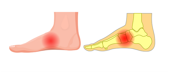 Pain in the arch of your foot? What does it mean?
