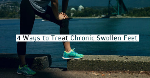 4 Ways To Treat Chronic Swollen Feet