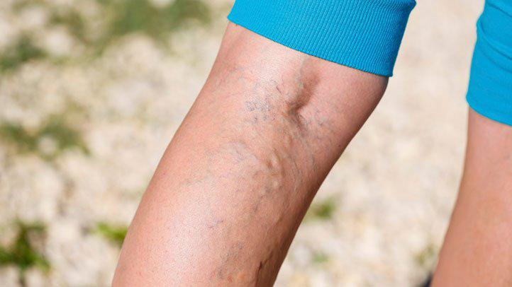 People with Varicose Veins