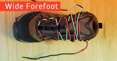 Wide Forefoot