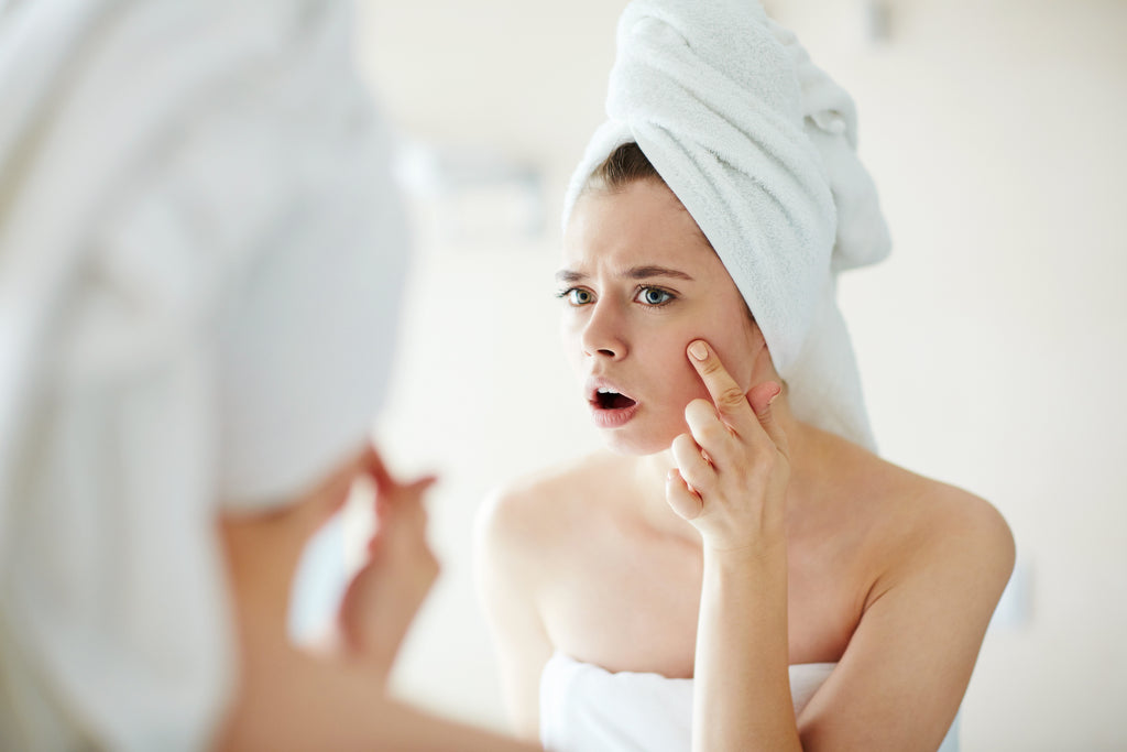 Your Pillowcase Might Be Causing Your Breakouts