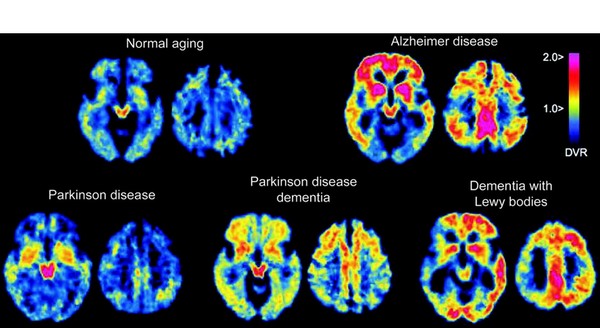 Brain Scans Alzheimer's Disease Lewy Body Disease and Parkinson's Disease