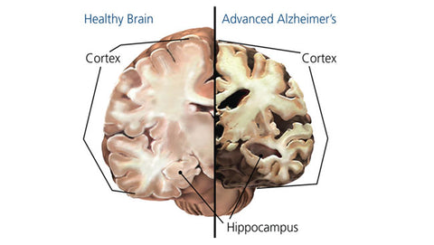 Alzheimer's Brain Comparison