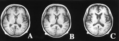 Progression of Brain with Lewy Body Dementia