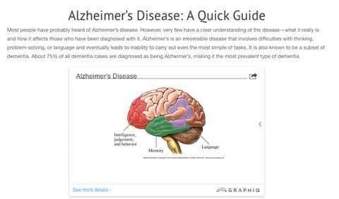 Alzheimer's Disease: A Quick Guide