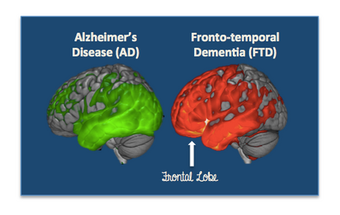 Alzheimer's Disease vs. Fronto-temporal Dementia Brain Scan