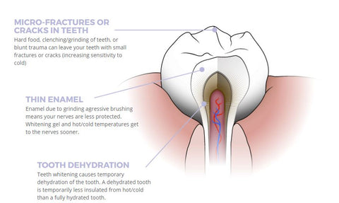 causes of sensitive teeth