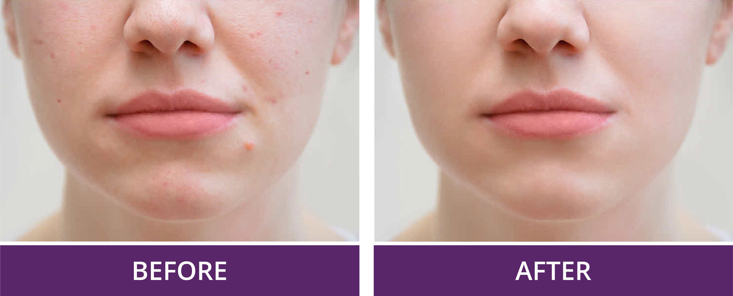 Before and after acne on a women's face, sleep on a silk pillowcase