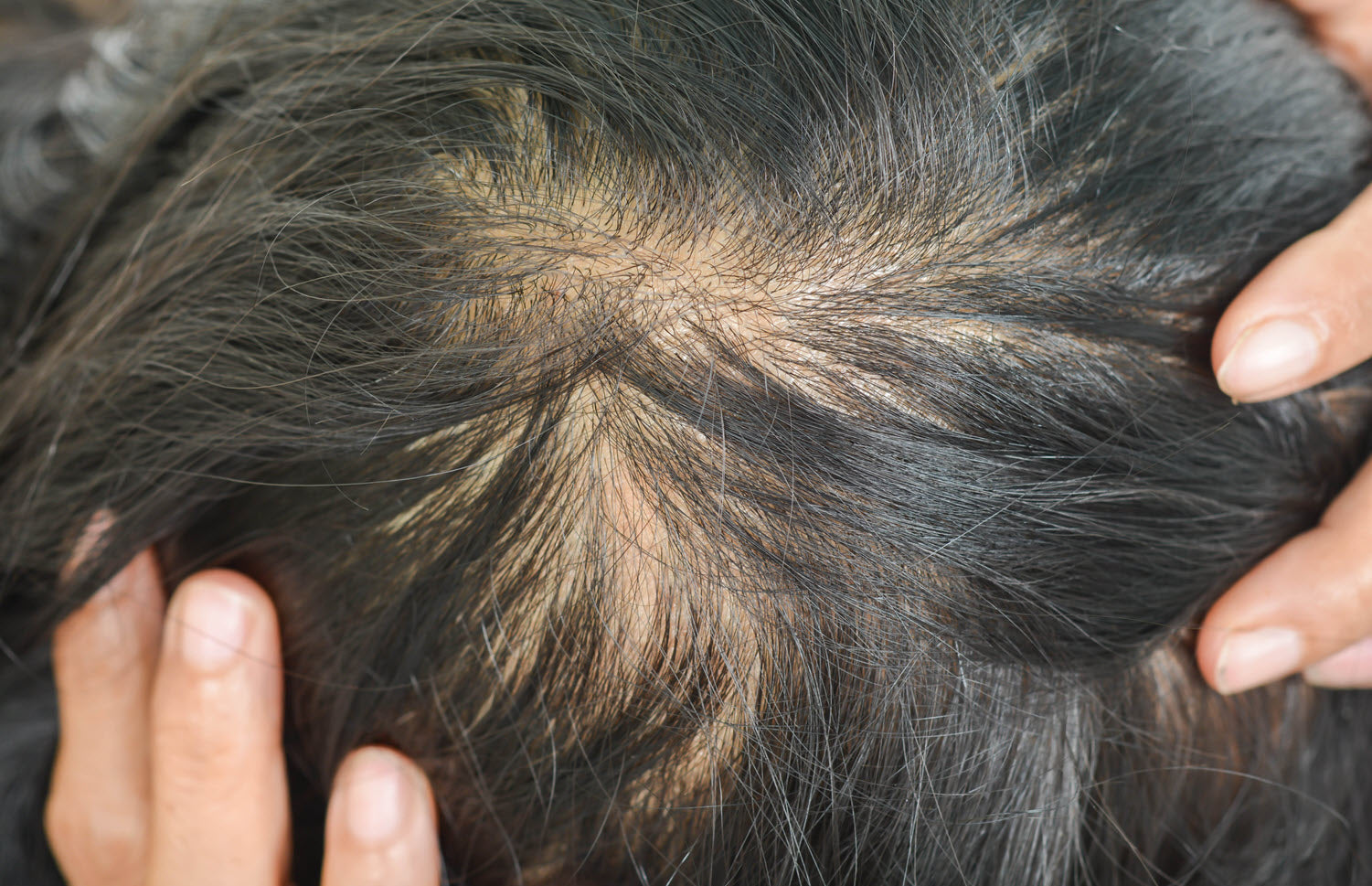 Women with thinning hair