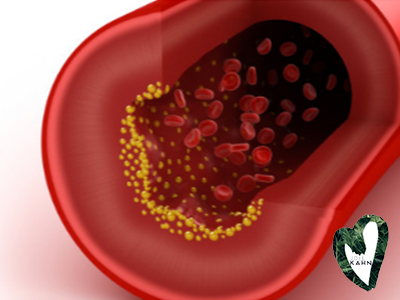 Diet-Heart And New Markers For Atherosclerosis