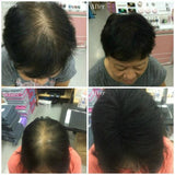 SOL Beauty Hair Building Fiber - ShopOnlineLah.com