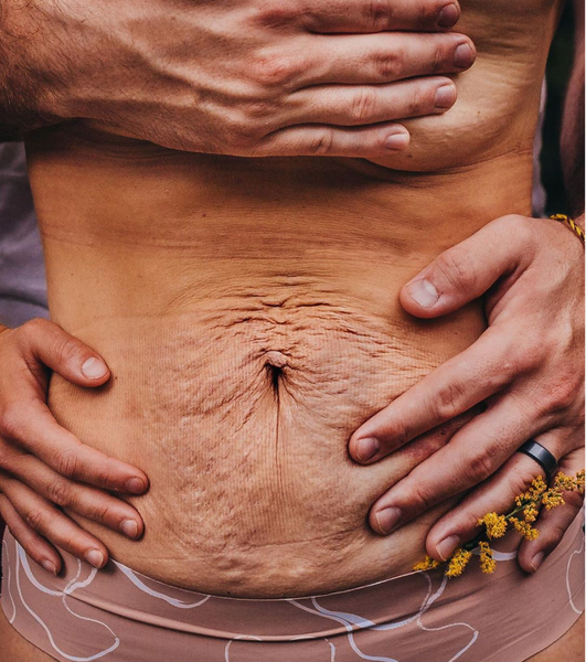 Picture of womans belly after birth