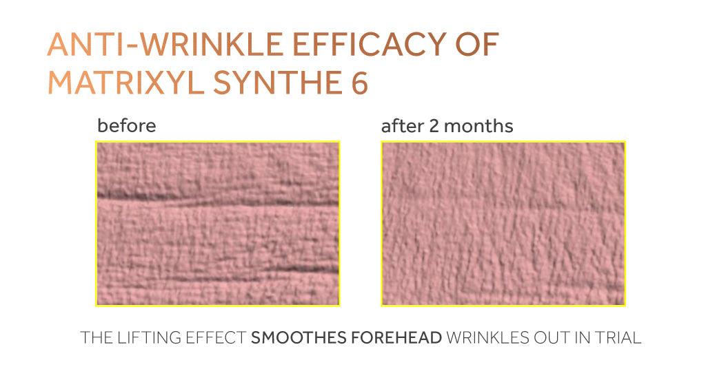 Graph showing reduction in forehead wrinkles using Matrixyl Synthe 6 in a clinical study