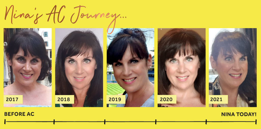 Photos of Nina, a white woman with brunette hair, showing Nina's Absolute Collagen journey dated 2017 to the present day showing the different stages of her journey