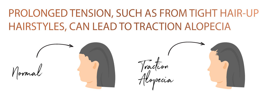 Graphic showing two women, one with a normal hairline and one with traction alopecia from tightly tied-back hair