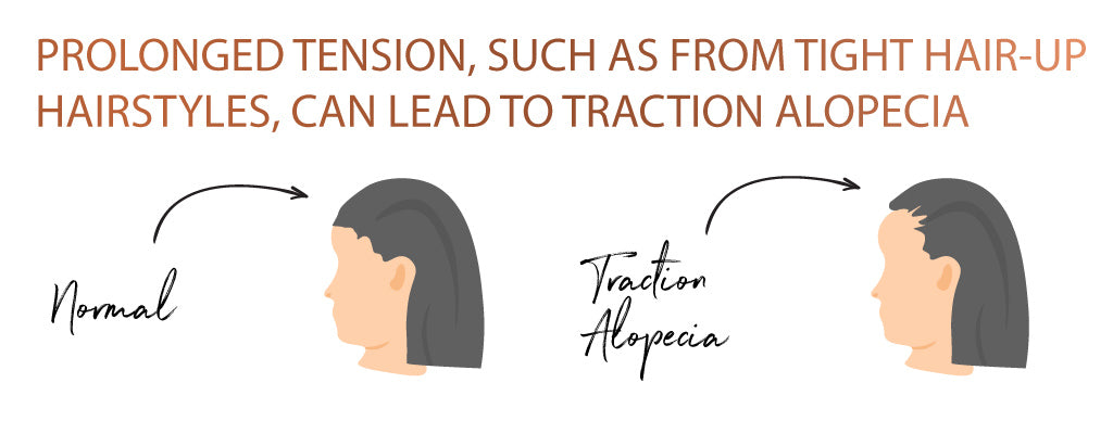 Graphic showing the effects of traction alopecia