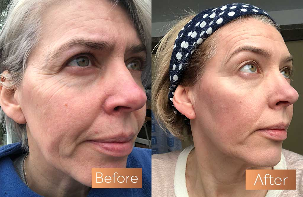 Image showing a before and after photo of a white woman looking to the right, she has smoother skin in the second photo from taking Absolute Collagen