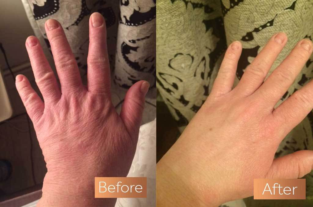 Kim hands before and after
