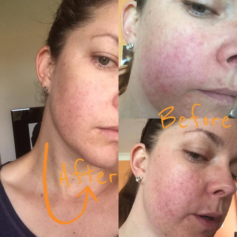 Before and after of taking Absolute Collagen marine supplement