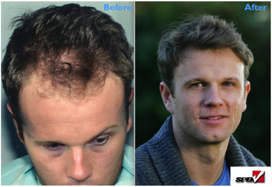 Spex before and after hair loss treatment
