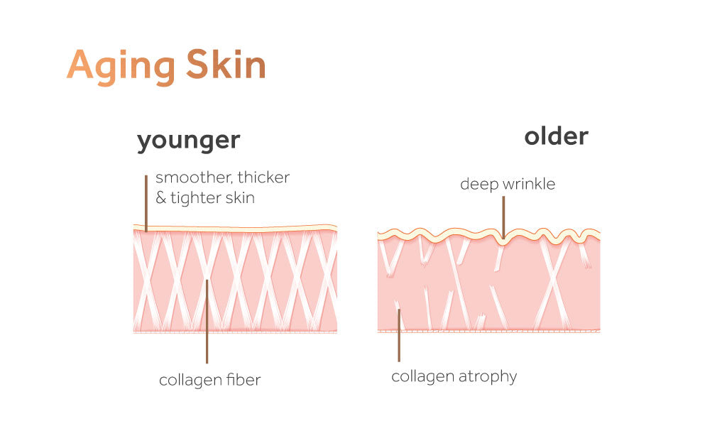 Image showing the difference between young and aging skin in terms of collagen fibre and atrophy.