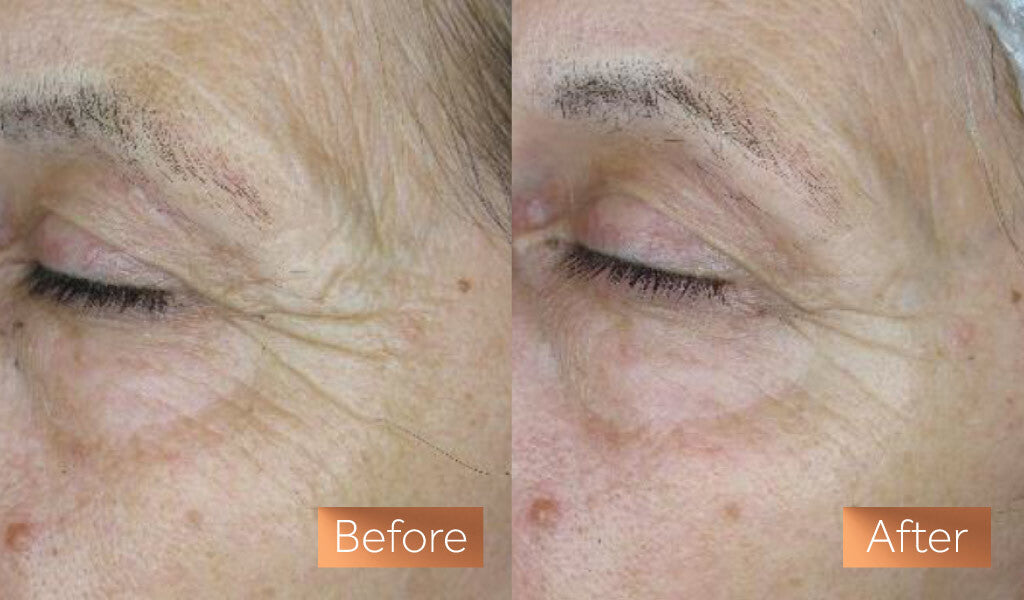 Before and after photos showing a close up section of a white woman's eye and cheek, in the second photo her wrinkles have reduced as a result of using Maxerum anti-aging serum