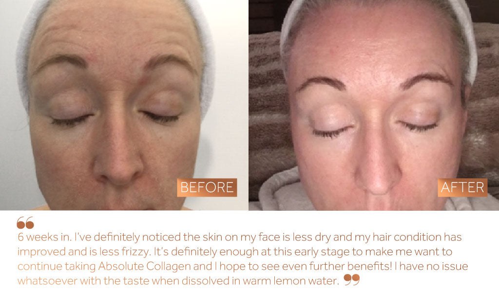 Before and after photo of dry skin on a woman's face following 6 weeks of Absolute Collagen consumption.