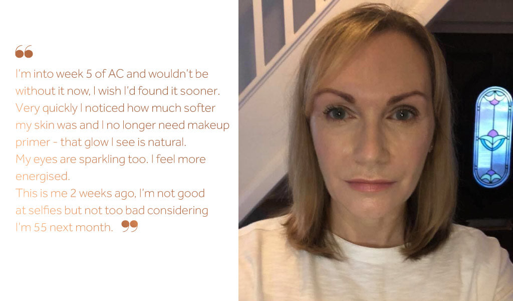 Photo of a white woman looking directly at the camera alongside a caption explaining the benefits to her skin since taking Absolute Collagen