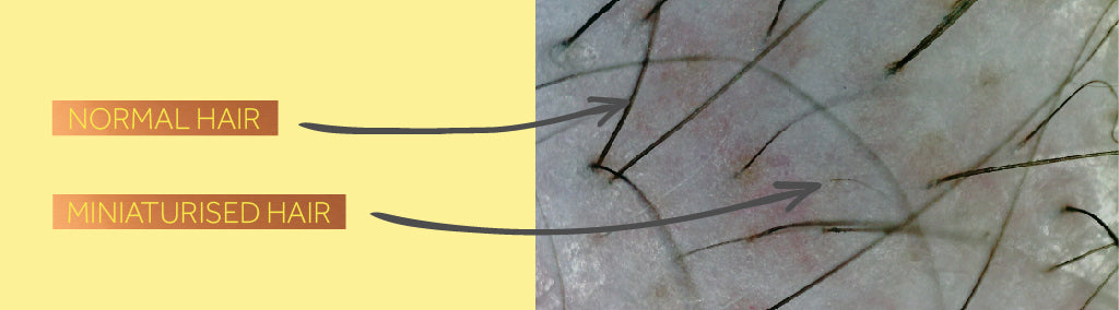 Close-up photo showing normal hair on a scalp alongside miniaturised hair