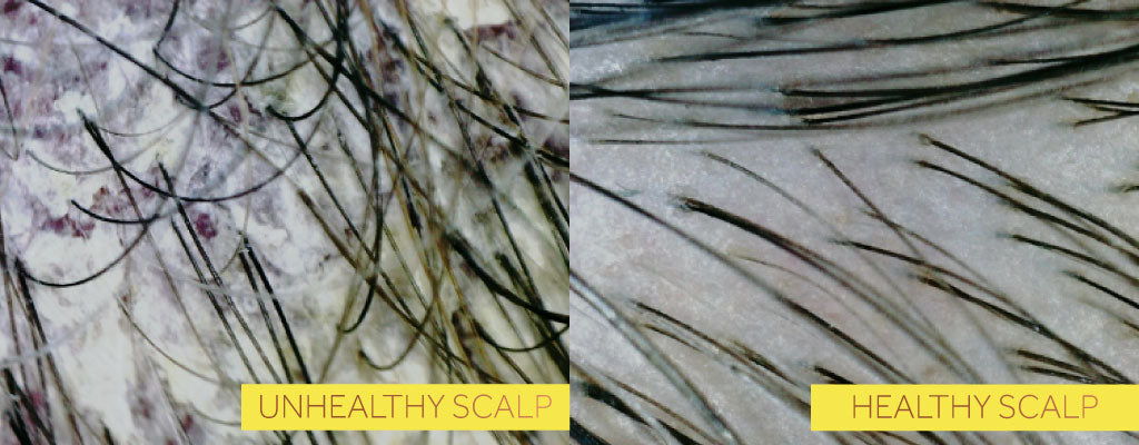 Two side by side photos, the first showing an unhealthy scalp with discolouration and the second showing a healthy scalp without
