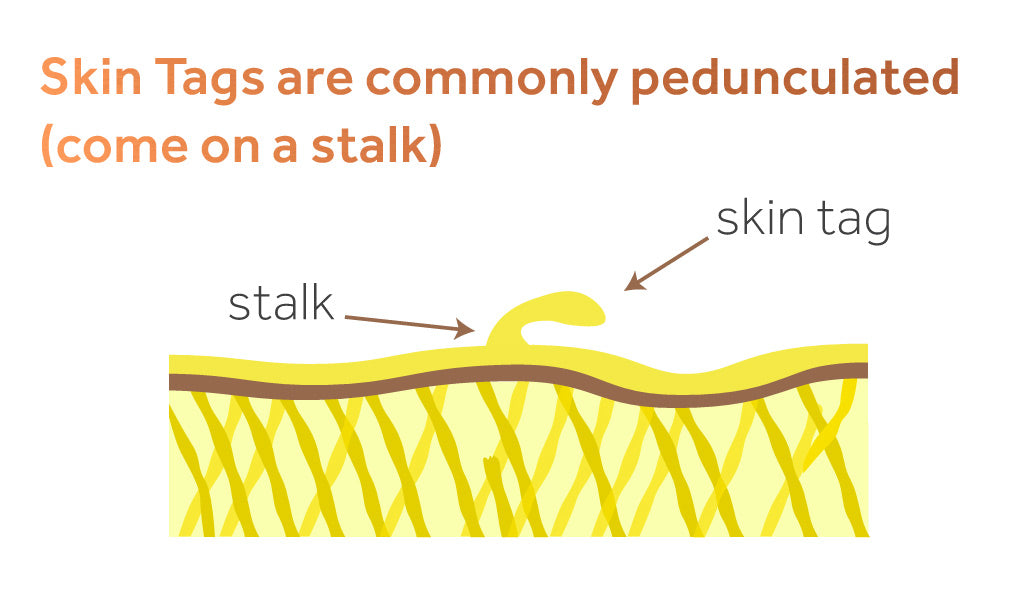 Image showing a skin tag on a stalk on the skin's surface