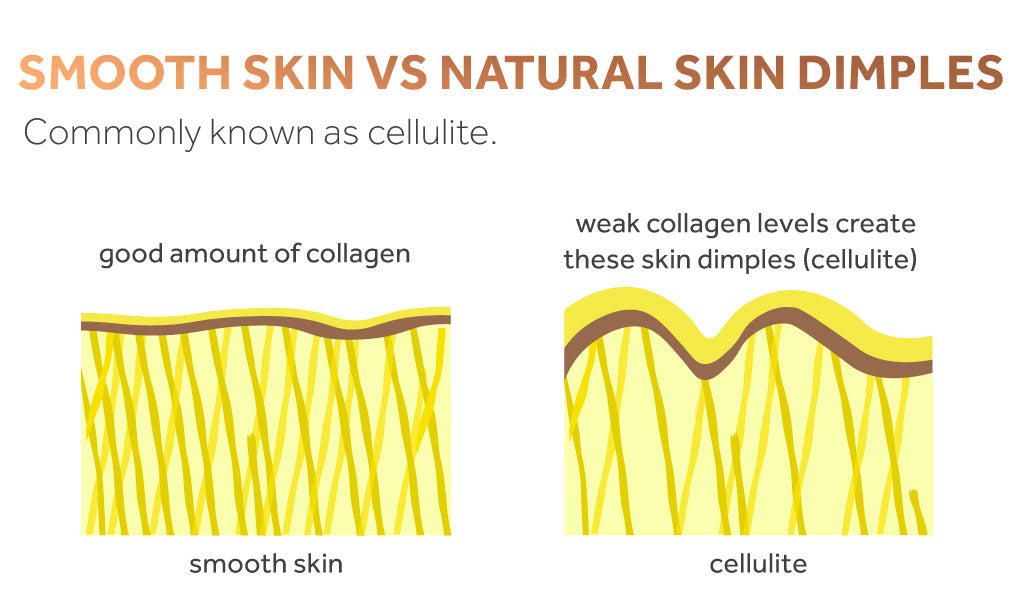 diagram showing the relationship between collagen levels and smooth skin vs dimpled (cellulite)