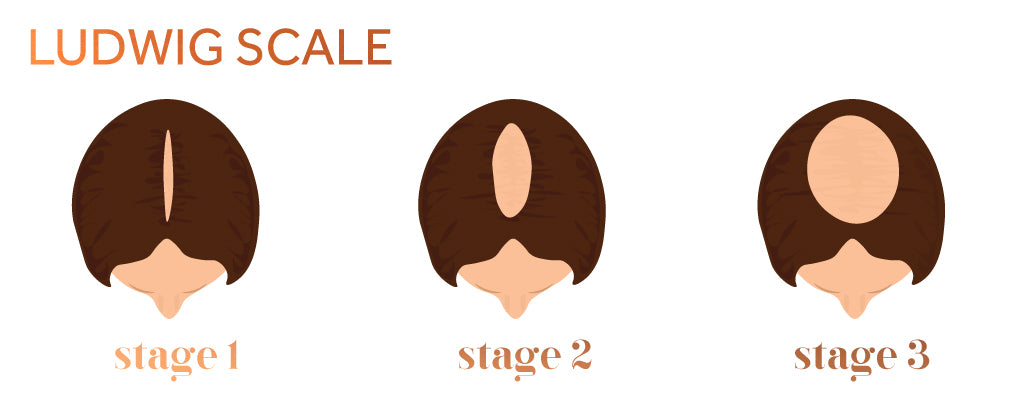 Graphic showing the three stages of female pattern hair loss according to the Ludwig scale
