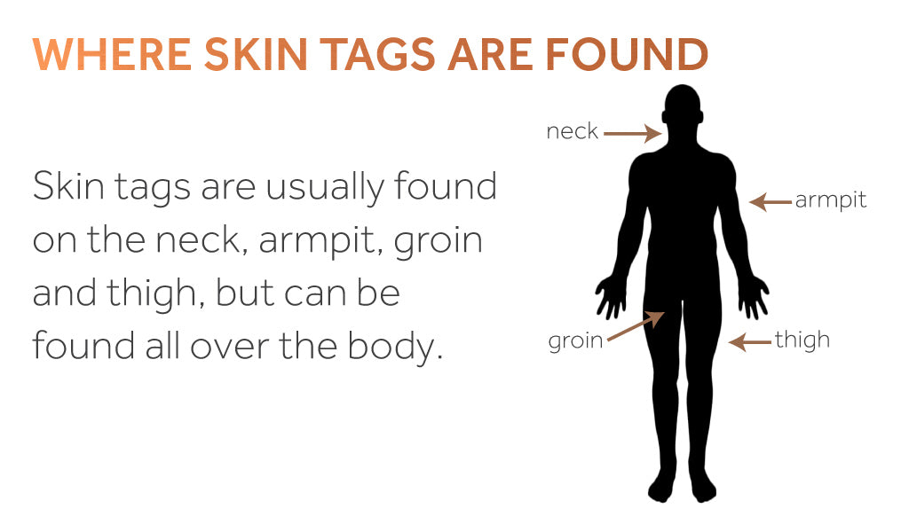 Image of a human body with labelled areas where skin tags are commonly found