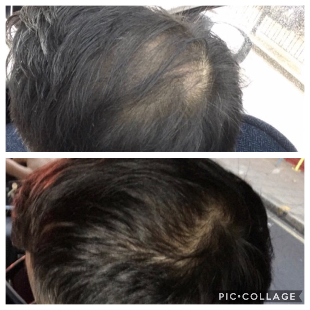 Before and after hair with absolute collagen