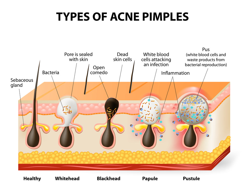 Diagram showing how acne is formed