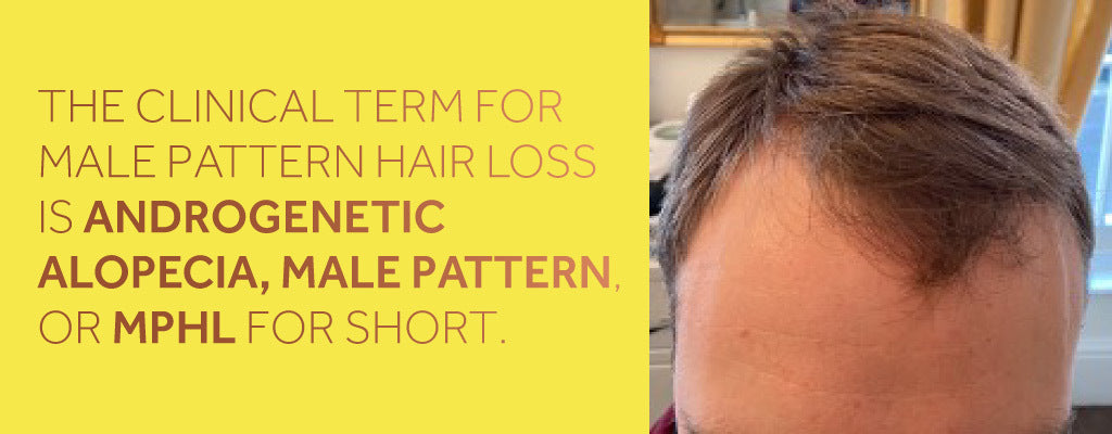 Close up photo showing a white man with brown hair who is suffering from male pattern hair loss, alongside a description of the medical terms for this condition