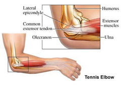 Tennis Elbow Support & Relief