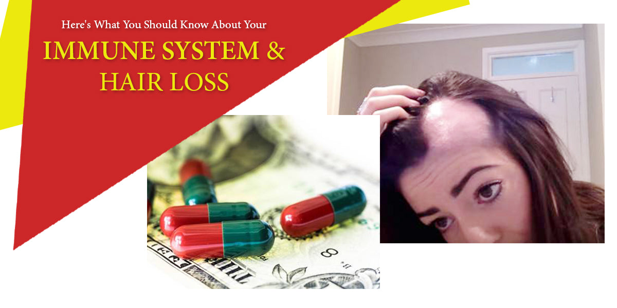 HERE'S WHAT YOU SHOULD KNOW ABOUT YOUR IMMUNE SYSTEM & HAIR LOSS