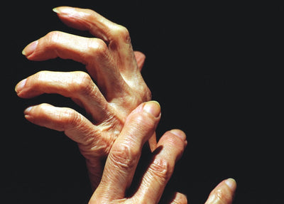 Five Common Sources of Arthritis Pain