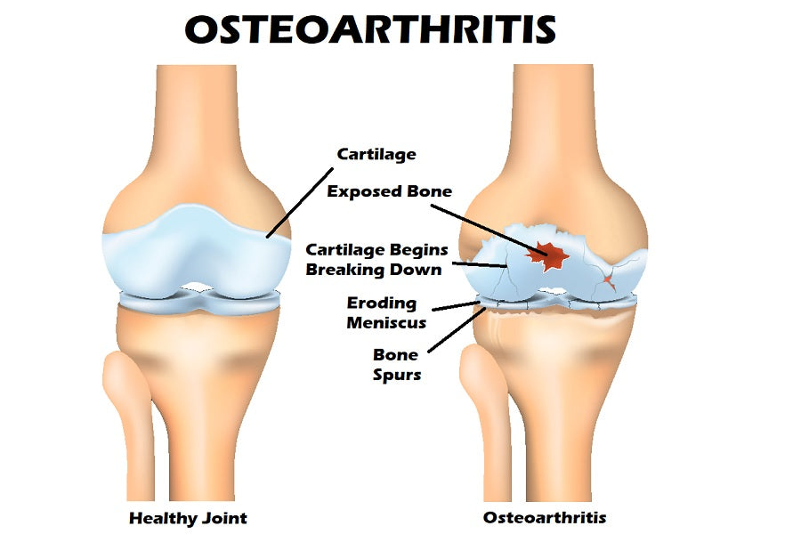 Breaking Health News: Symptoms of Osteoarthritis