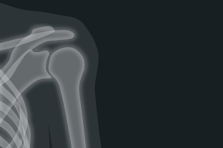 Dangers of Frozen Shoulder