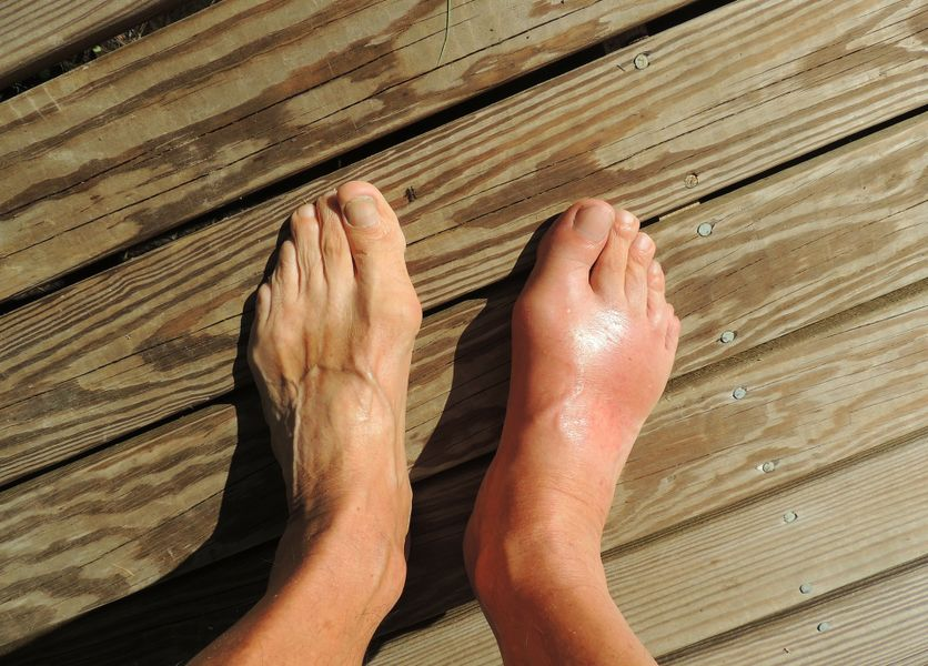 Simple Health Tips for Gout Sufferers