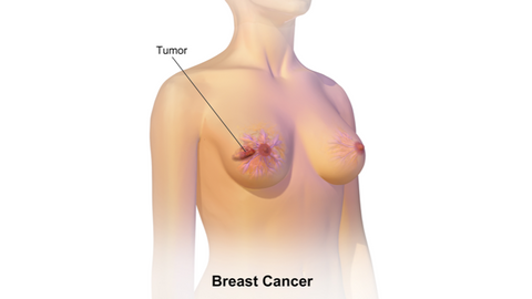 Breast Cancer from Deodrant