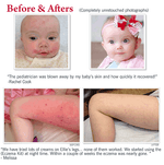 Eczema Experts Hydrocortisone Barrier Cream