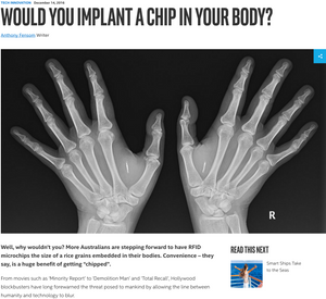 Would you implant a chip in your body?